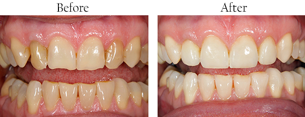 Orthodontic Before and After