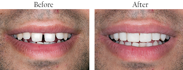 Teeth Straightening Before and After