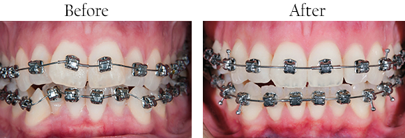 Before and After Teeth Straightening