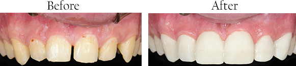 111782 Before and After Teeth Straightening